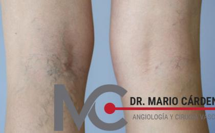 Angiólogo en Monterrey - Dr. Mario Cárdenas